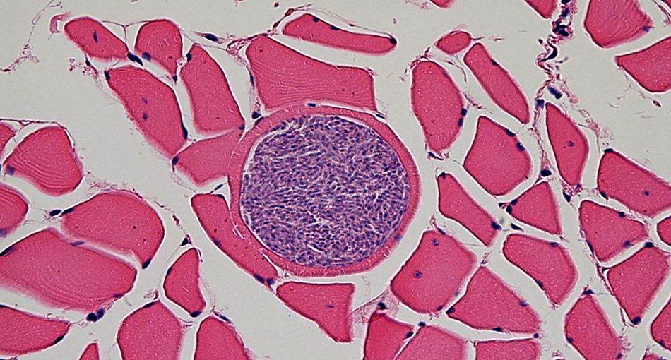Zyste mit Sarcocystis pinnipedi, Bild: Michael Grigg